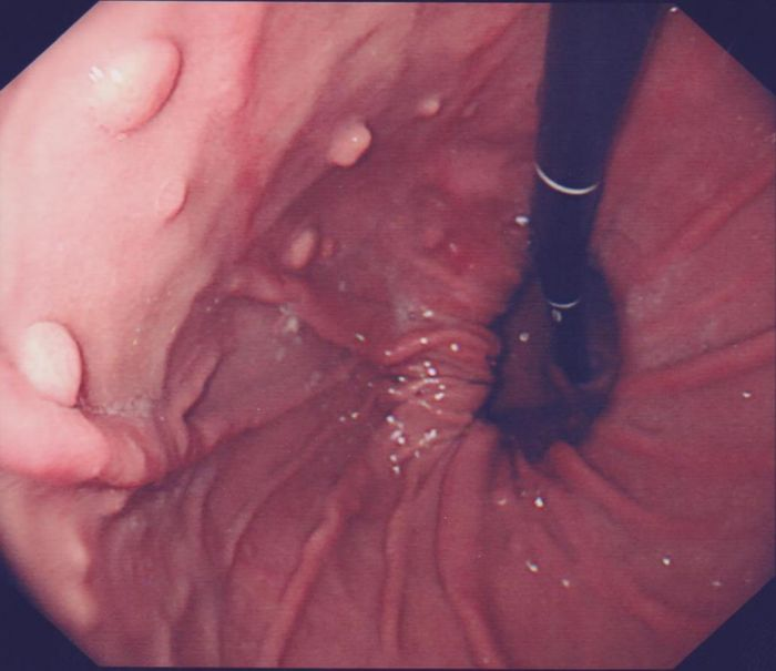 Hiatus Hernia - Sussex Surgical