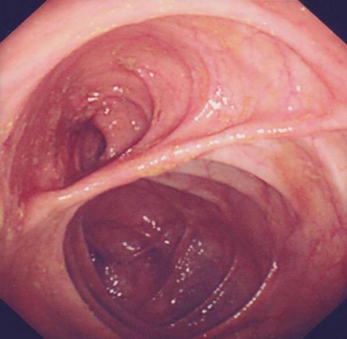 Anastomosis - Bowel Cancer